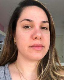 Rinoplastia parte II: as mudanças após três meses de cirurgia