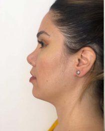Diário da rinoplastia: a cirurgia plástica de nariz, um ano e meio depois